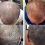 Scalp Micropigmentation in Naples fl