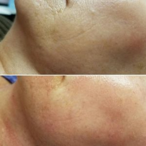 PRP Advanced Microneedling